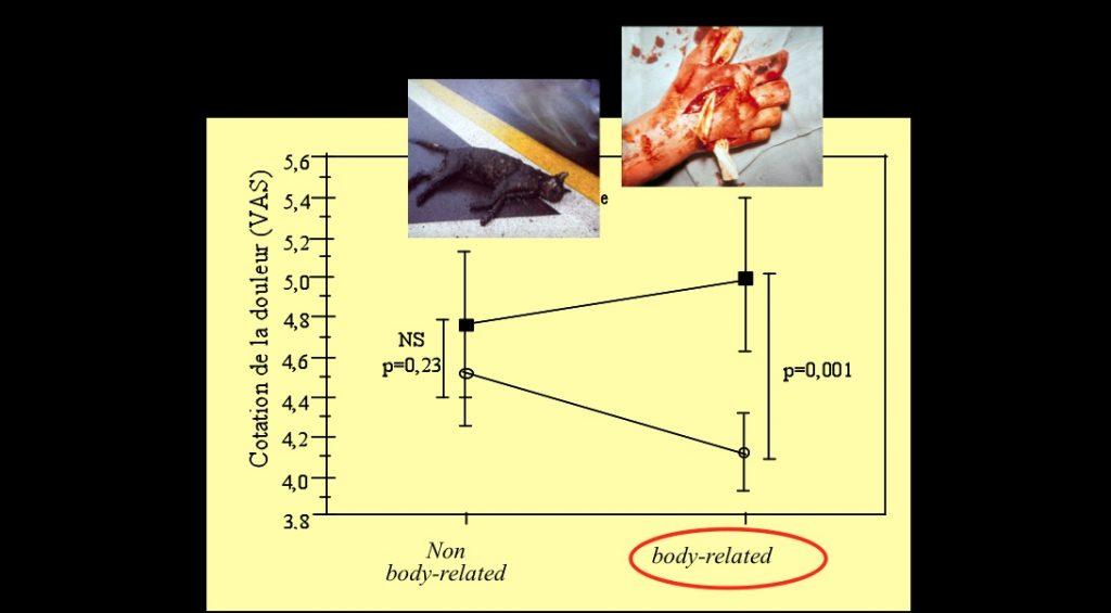 Pourquoi la perception de la douleur est plus forte quand on regarde des images de blessures. ©Godinho et al., Journal of Neuroscience 2006
