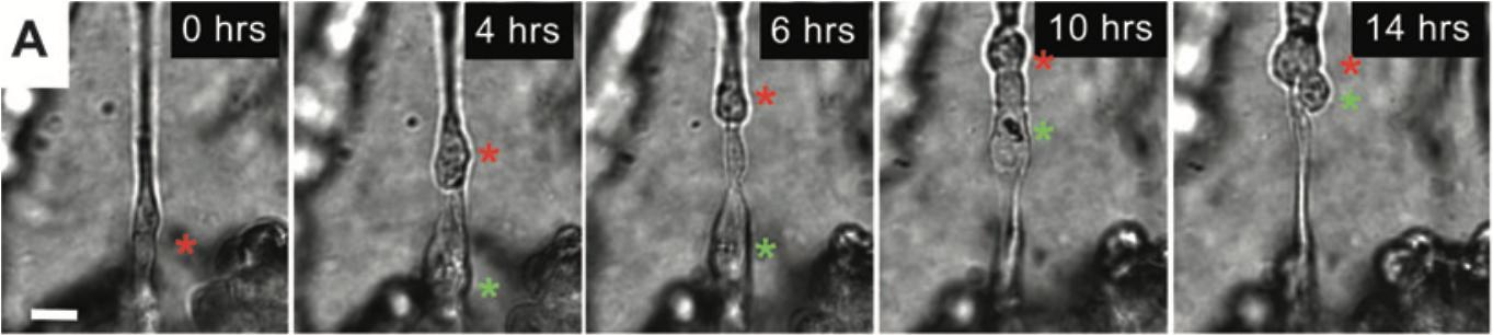 Timelapse montrant la migration de deux cellules cancéreuses le long d'un nerf.