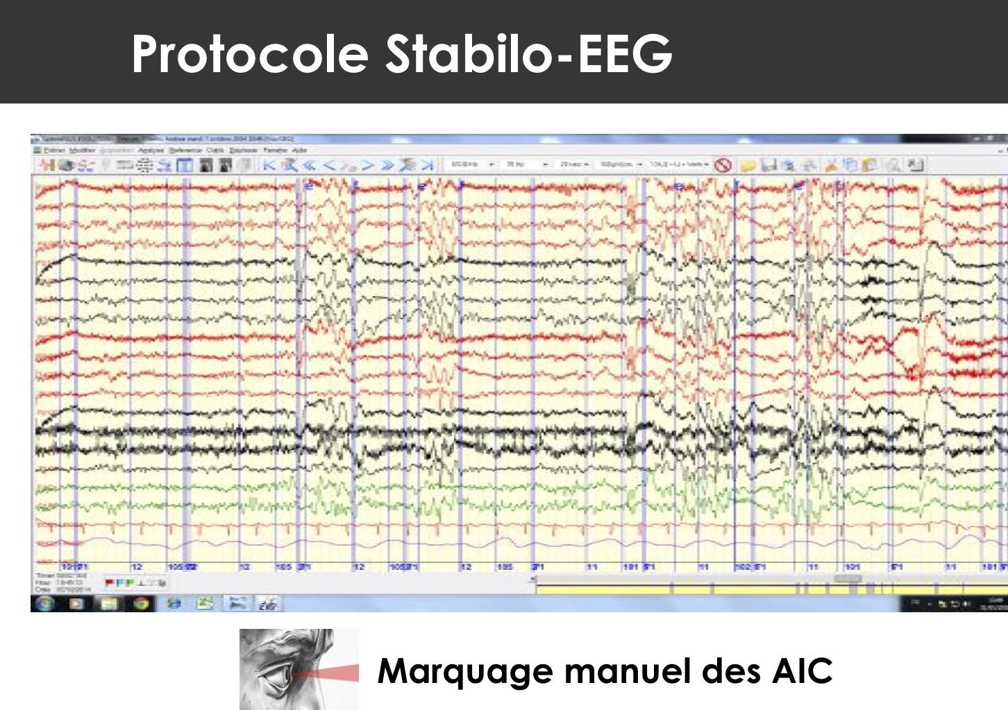 Marquage des AIC sur un EEG (photo : DR)