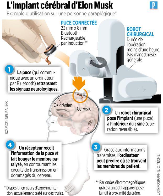 The Link, l'implant cérébral d'Elon Musk, et le robot chirurgical qui permettra de l'implanter (infographie : Le Parisien, 2020)