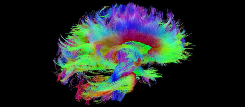 Faisceaux des fibres cérébrales (IRM)