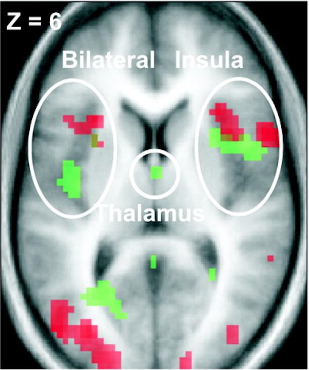 Résultats tirés de l'article de Singer et al., 2004 représentant les réseaux communs et distincts entre douleur réelle (vert) et imaginée (rouge). Photo : DR