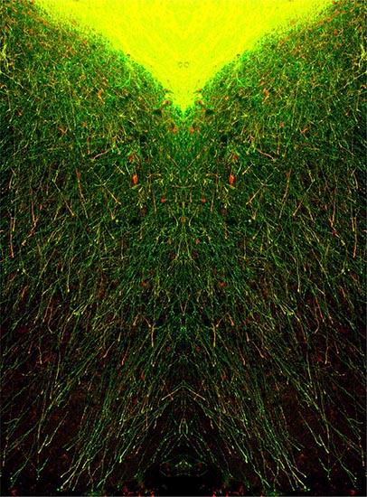 Projections des neurones greffés avec délais au niveau du cortex. ©Afsaneh Gaillard