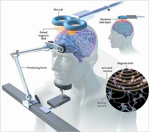 Comment fonctionne la stimulation magnétique transcrânienne répétitive (rTMS)