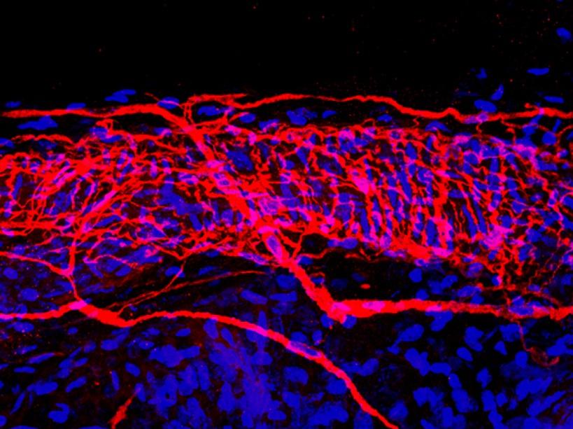 Terminaisons nerveuses de la peau en rouge et cellules du derme en bleu - EMBL