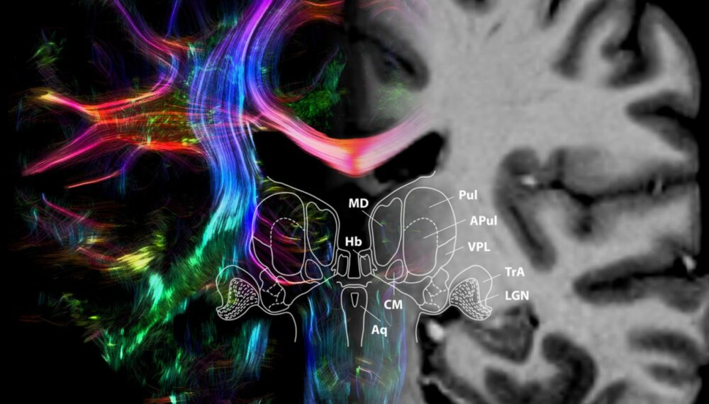 l'IRM quantitative, une nouvelle méthode pour observer le thalamus ©Max Planck Institute